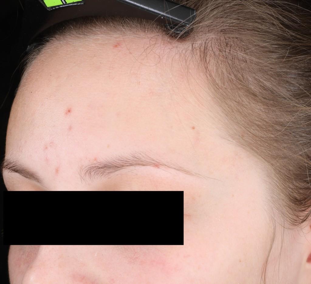 014-D14-L-SD-forehead
