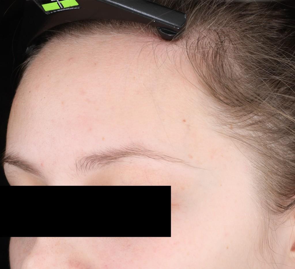 014-D56-L-SD-forehead